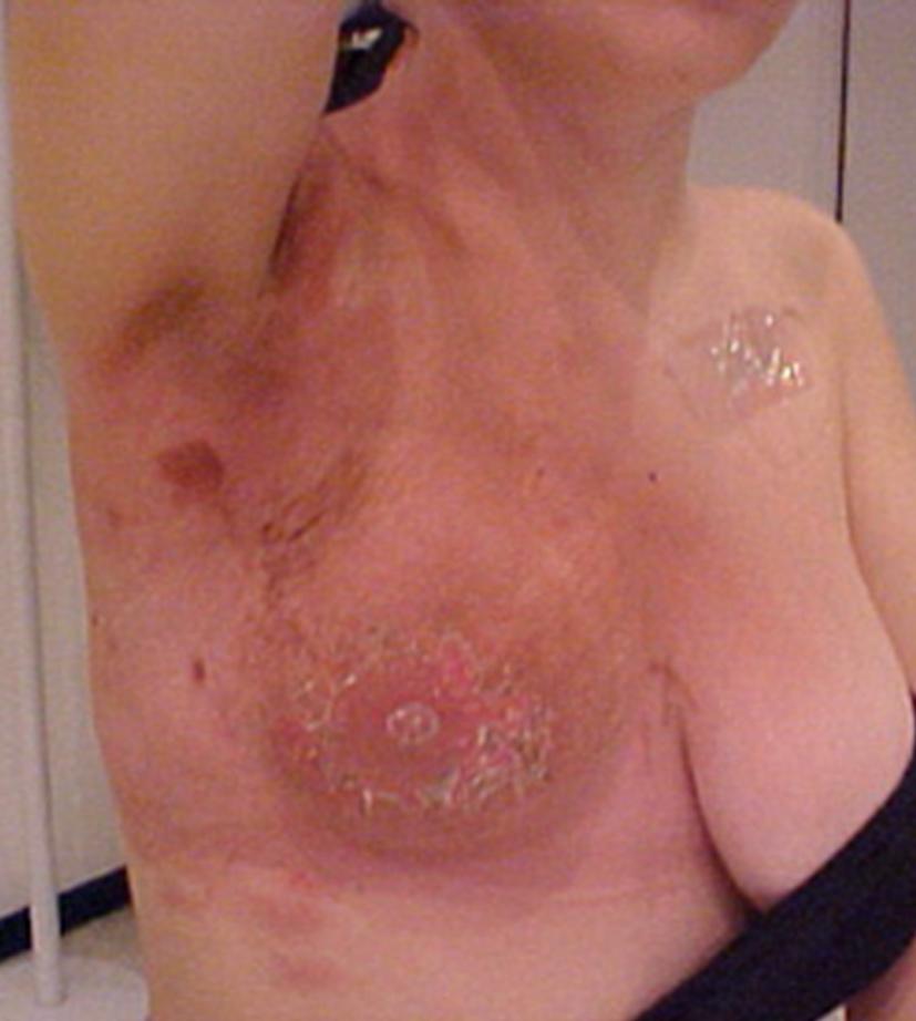 Breast Cancer and Dermatitis Herpetiformis - treato.com
