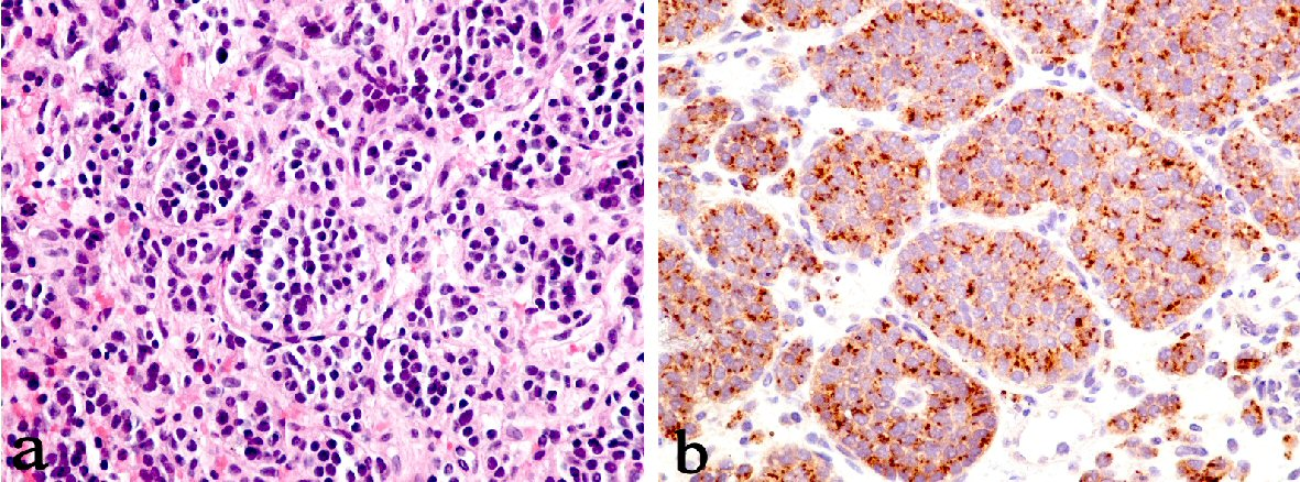 Adenocarcinoma of Lung and Bronchial Carcinoid Presenting as