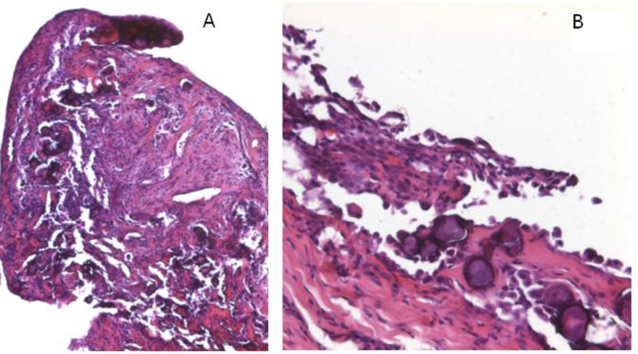 Image Result For Malignant Peritoneal Mesothelioma