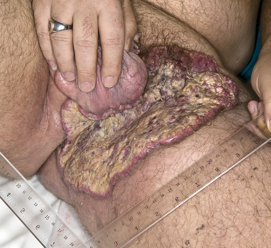 Locally Advanced Cutaneous Squamous Cell Carcinoma: Two Case